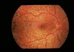 Panfotocoagulare laser